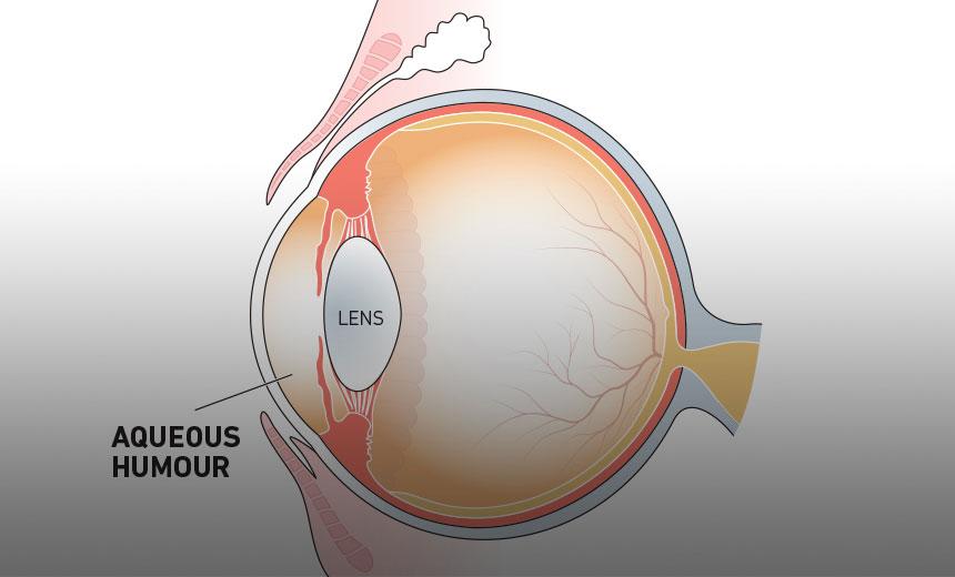The Aqueous Humour Vision Eye Institute