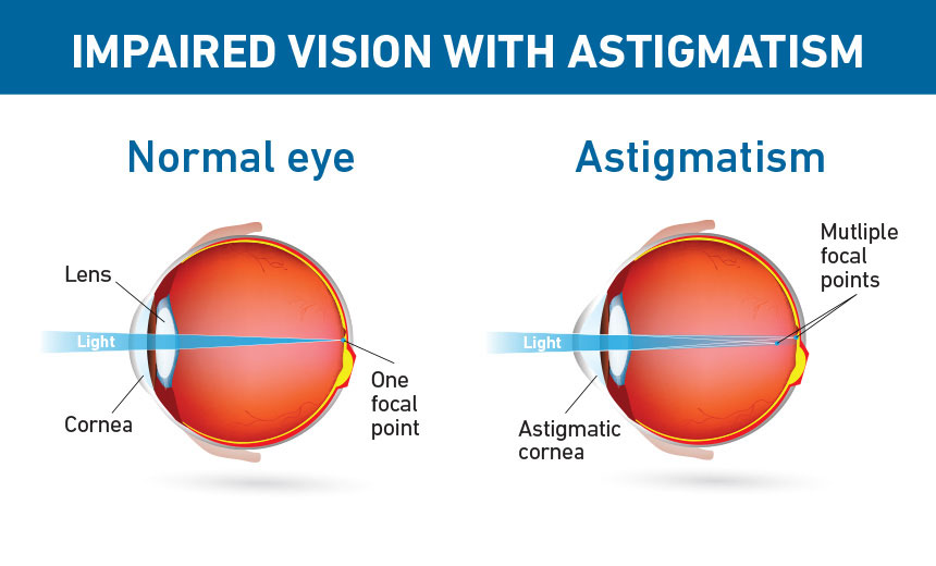 IMPAIRED VISION WITH ASTIGMATISM. Drawing of Normal eye indicating Lens, Cornea, and One focal point with light path across eye. Drawing of Astigmatism indicating Astigmatic cornea and Multiple focal points