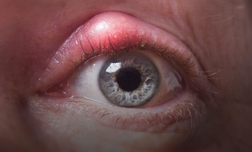 Blepharitis Vision Eye Institute