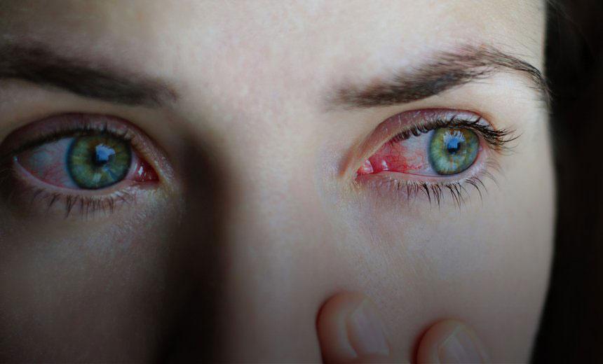 conjunctivitis or pink eye sufferer